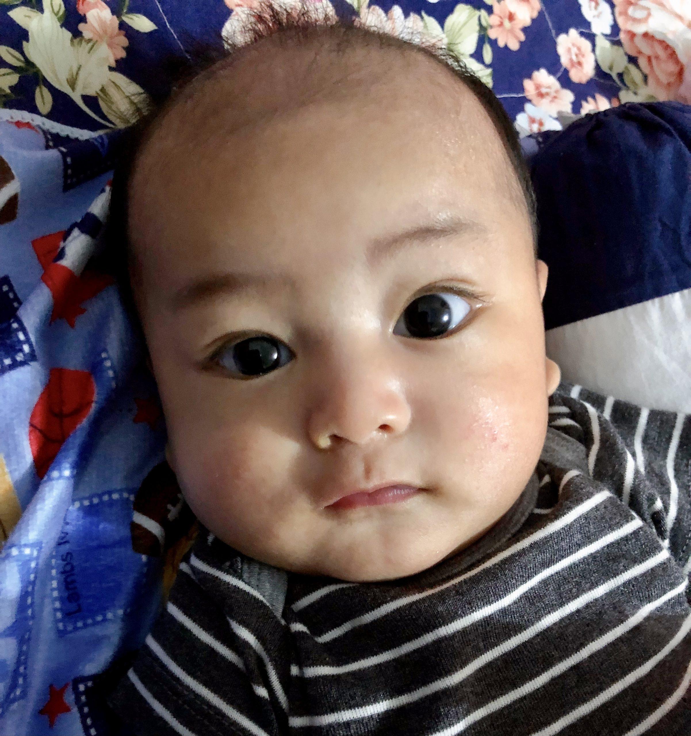 kulit bayi rashes